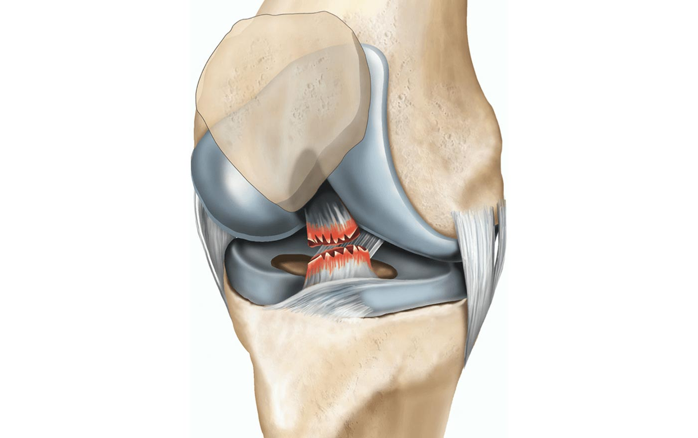 Figure 1. Picture of torn ACL