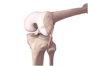 anterolateral-ligament-knee